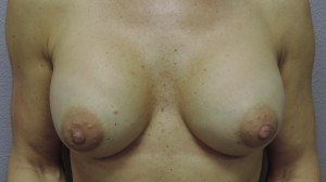 PROTHESES SEINS 2 (1)